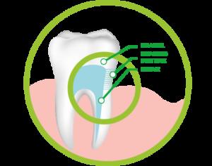 exposed dentine